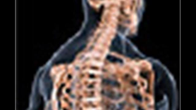 Weight-Loss Surgery and Women's Osteoporosis Risk